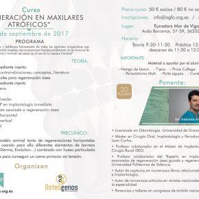 CURSO REGENERACIÓN EN MAXILARES ATRÓFICOS. 30 DE SEPTIEMBRE DE 2017.