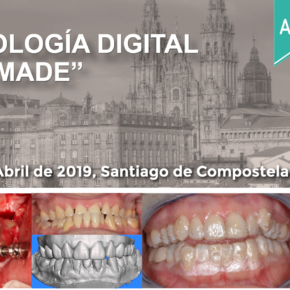 "CURSO ODONTOLOGÍA DIGITAL ""HOME MADE"". 6 DE ABRIL DE 2019."
