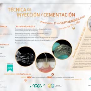 CURSO TÉCNICA DE INYECCIÓN Y CEMENTACIÓN. 11 DE SEPTIEMBRE DE 2020.